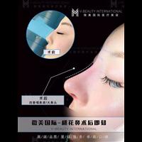 昆明鼻综合整形专家