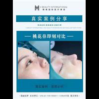 昆明鼻综合整形修复