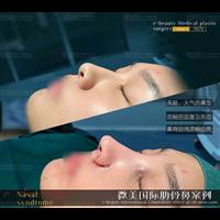 昆明鼻整形修复医院