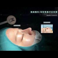 昆明鼻整形修复医生