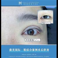 眼综合3项术前术后对比