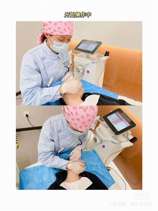 IDO整形张忠溢|上海上海IDO整形安群