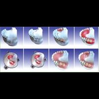 牙胶脱支架制作模型
