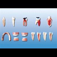牙齿病变系列模型
