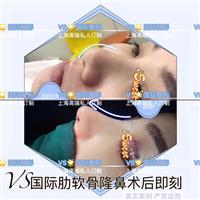 上海VS专业修复整形
