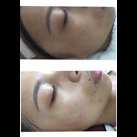 日式肌肤管理