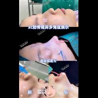 奢悦医疗美容肋骨鼻案例展示