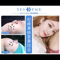 南京yesface颜初整形 南京颜初医疗美容