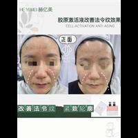 DMK生物酶疗_DMK血流效应