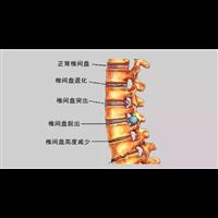 润之堂中医_钟祥腰间盘突出专业中医治疗中心