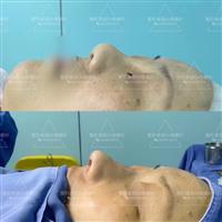 楼善叶医生做鼻整形多少钱?