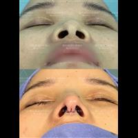 楼善叶医生做鼻子做的怎么样?鼻综合术后注意事项