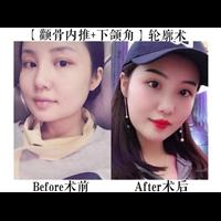 上海专业磨骨整形医院