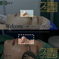 长沙哪家整形医院做鼻子好
