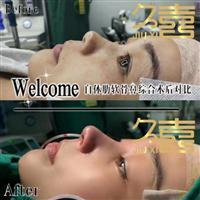 长沙专做鼻子的医院
