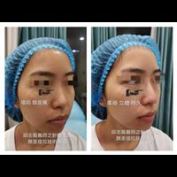 邱志龙医师隆鼻案例