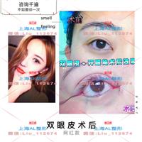 上海割雙眼皮哪家好_上海整形