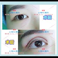 上海割雙眼皮_上海眼綜合整形