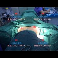 上海隆胸整形哪家好_豐胸整形醫院
