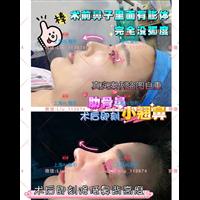 上海人氣整形_AL國際鼻整形醫院