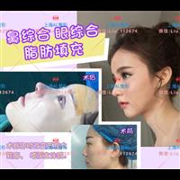 上海做鼻子哪家醫院做的好_鼻整形