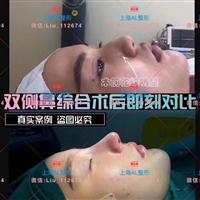 上海隆鼻需要多少錢_上海鼻整形