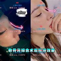 上海做鼻综合多少钱_上海鼻整形医院