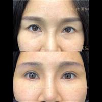 广州做双眼皮修复专家