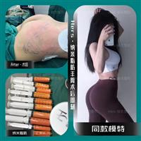 深圳做自体脂肪丰臀多少钱