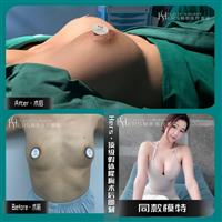 丰胸整形术后护理知识