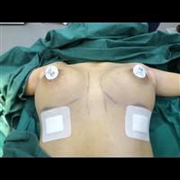 深圳專業隆胸修復整形