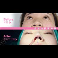 长沙鼻综合整形修复专家