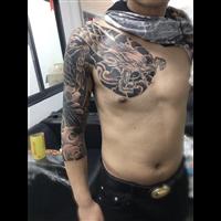 芜湖激光洗纹身