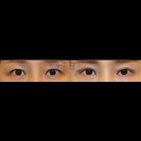 眼修复对比