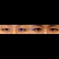 眼部前后对比