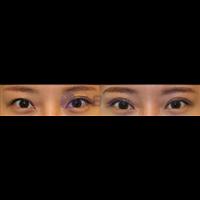 眼部前后對比