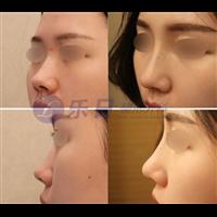 鼻子前后对比
