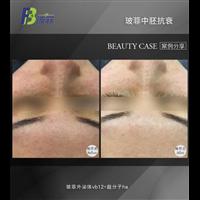 廣州鼻部整形效果怎么樣