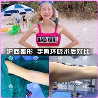 上海做手臂吸脂多少钱