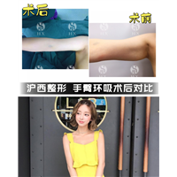 上海专业吸脂整形医院