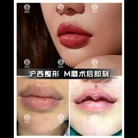 上海做微笑唇多少钱