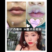上海做M唇价格多少