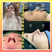 上海肋骨鼻整形多少錢