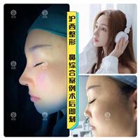 上海隆鼻整形要多少錢