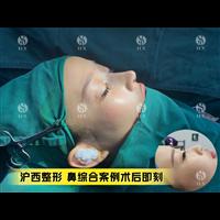 上海滬西鼻綜合整形哪家專業