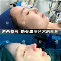 上海滬西做肋骨鼻綜合多少錢