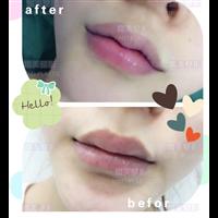 熠美整形M唇整形案例