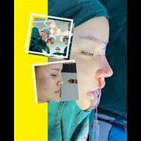 上海鼻整形医生