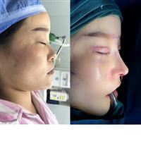 上海鼻整形医生推荐