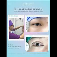 广州鼻整形专家